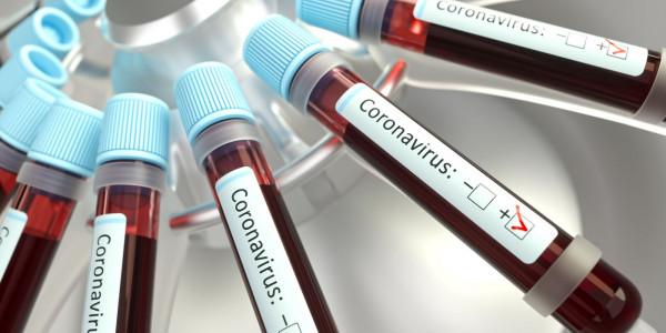 Bitcoin-Kurs und Corona-Virus CoronaCoin